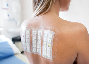 Everything You Need to Know About Allergy Patch Testing