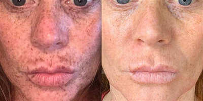People are calling this $23 dark spot correcting serum a 'miracle worker'