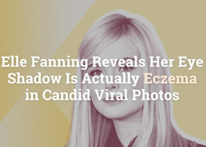 Elle Fanning Reveals Her Eye Shadow Is Actually Eczema in Candid Viral Photos