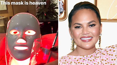 Chrissy Teigen Loves This LED Acne Mask