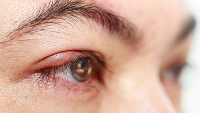 Why Does How To Get Rid Of a Stye - Stat!
