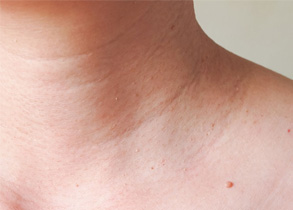 5 Things You Should Never Do to a Skin Tag