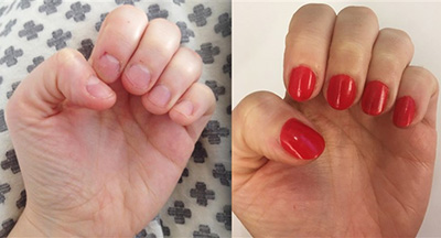 This polish helped thousands of users stop biting their nails