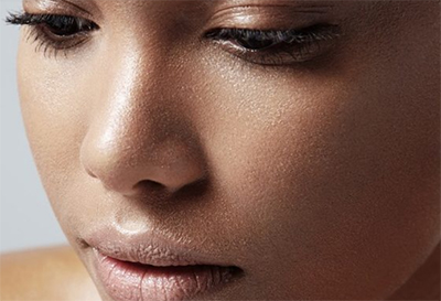 Dermatologists' Top Tips for Oily Skin