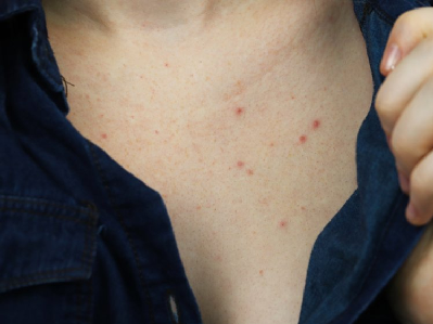 Why you're getting acne on your chest and what you can do to get rid of it
